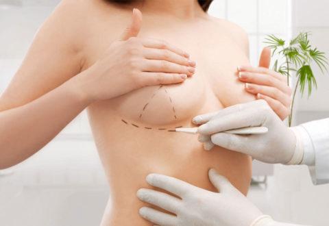 Brustverkleinerung istanbul