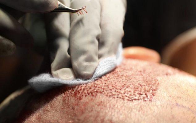Haartransplantation FUE Entnahme Methoden