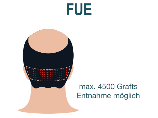 Haartransplantation FUE und FUT
