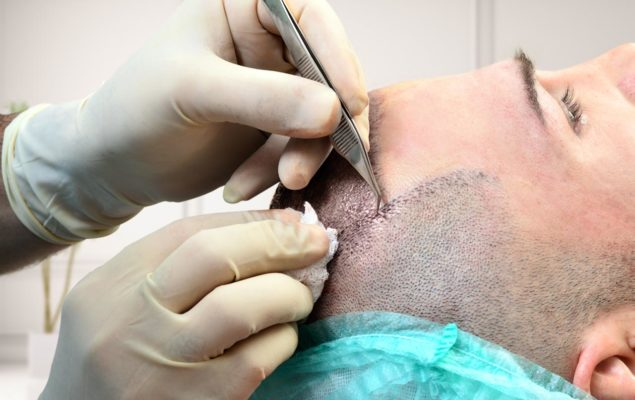 Haartransplantation Manuel Methoden