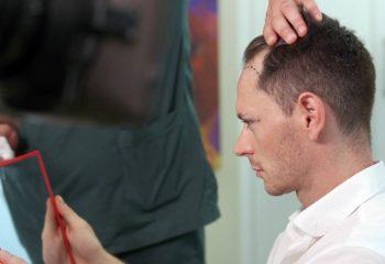Haartransplantation Ablauf Istanbul