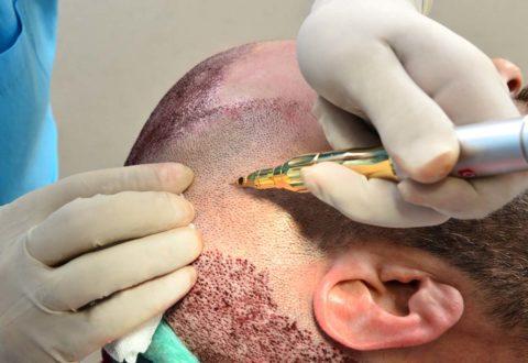 Haartransplantation FUE GOLD Technik