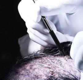 Haartransplantation Perkutan