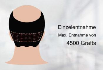 Haartransplantation FUE Methoden
