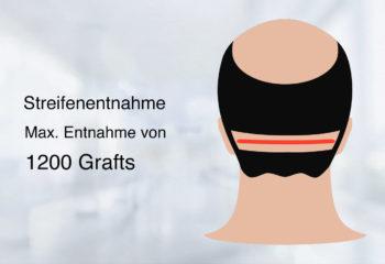 Haartransplantation FUT Methoden
