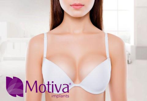 Motiva Brustimplantat Türkei